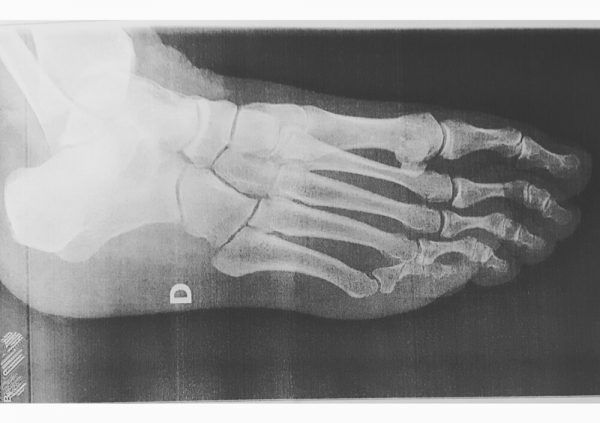 mi pie derecho