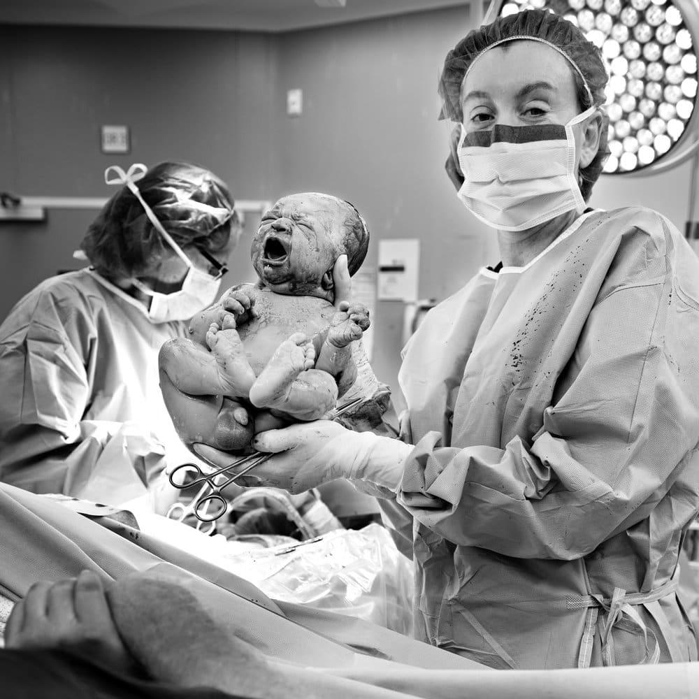 recién nacido en quirófano